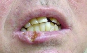 Рана на нижней губе при раке
