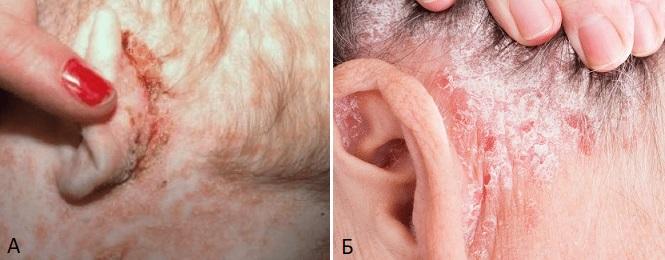 Себорейный дерматит за ухом