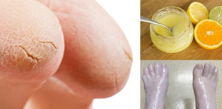 Трещины на пятках причина и лечение в домашних условиях