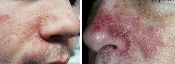 Дерматит на коже носа