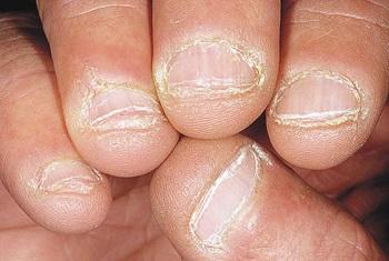 Шелушащаяся кутикула и кожа вокруг ногтей
