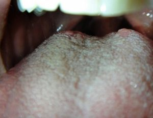 Белый волосатый язык