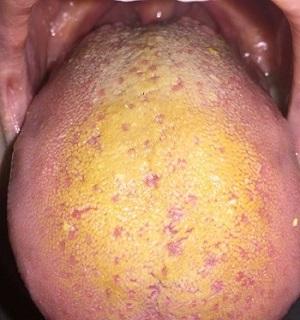 Желтый налет на языке у ребенка 1 год фото