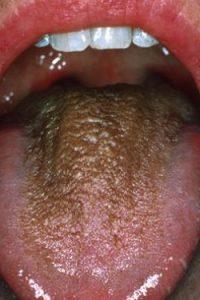 Коричневый волосатый язык