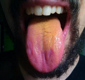 Оранжевый налет на языке