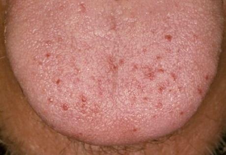 Воспаление сосочков языка