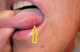 Опухшая язвочка у основания языка
