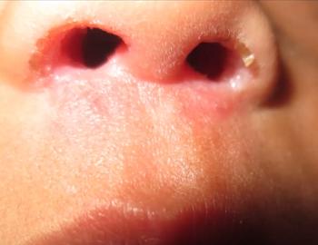 Бактериальная инфекция в преддверии носа