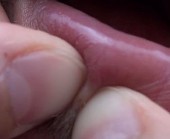 Черный угорь (открытый комедон) на губе