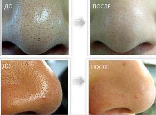 До и после удаления черных точек на носу