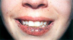 Гиперпигментация губ при синдроме Пейтца — Егерса