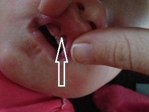 Короткая уздечка на верхней губе у новорожденного