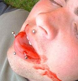 Кровотечение после пирсинга языка