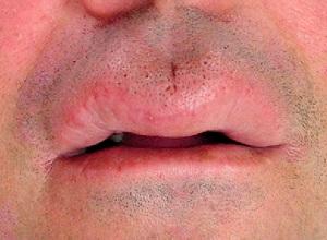 Отекшая верхняя губа у мужчины