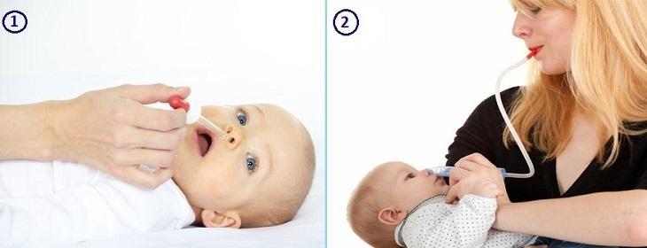 Закапывание носа и удаление слизи у ребенка