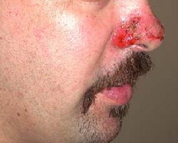 Раны от пузырчатки обыкновенной на носу