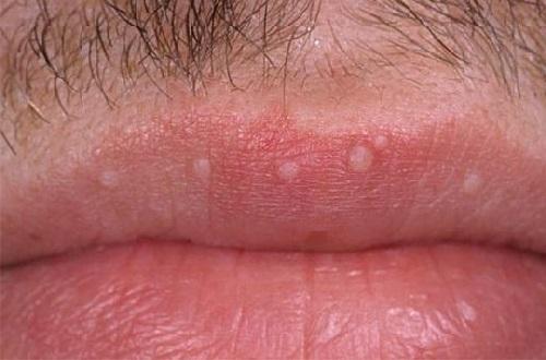Светлые бородавки на губах при ВПЧ