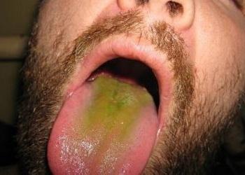 Зеленый налет на языке у взрослого