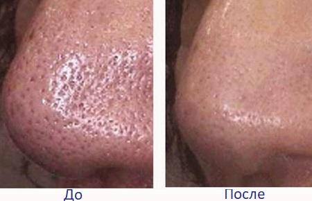 До и после очистки пор на носу