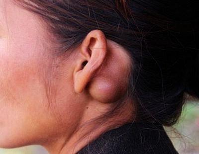 Доброкачественная опухоль за ухом