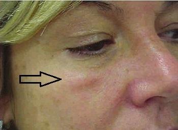 Малярные мешки на щеках под глазами