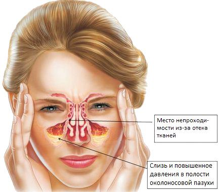 Природа заложенности носа