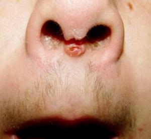 Риски при пирсинге перегородки носа