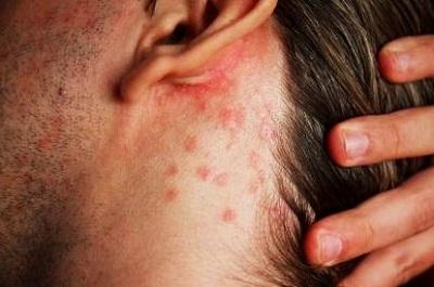 Неровности за ухом из-за себорейного дерматита