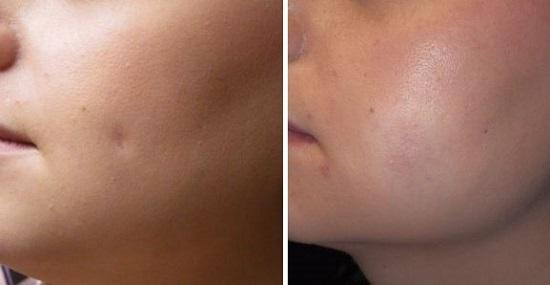 Дл и после удаления шрама после пирсинга щеки