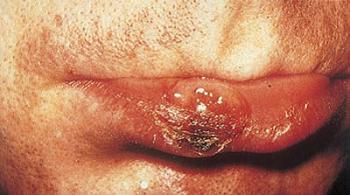 Сифилис на губе