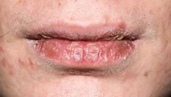 Сильно потрескавшиеся губы