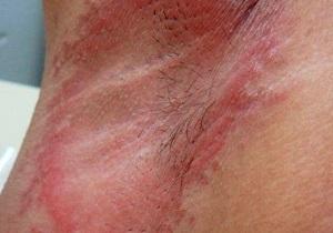 Сыпь под мышкой из-за дезодоранта