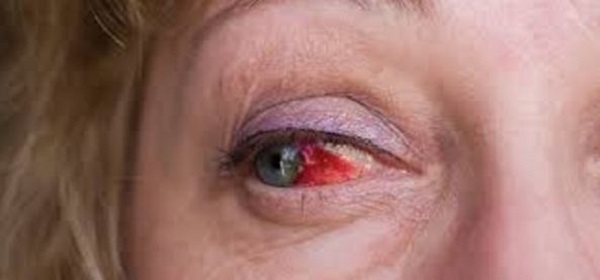 Глаз налился кровью из-за травмы