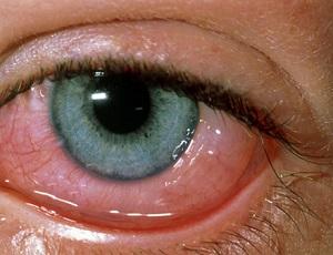 Отек век при глазной аллергии