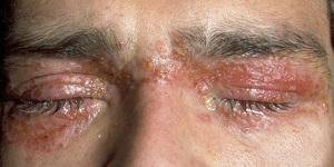 Контактный дерматит – экзема на веках