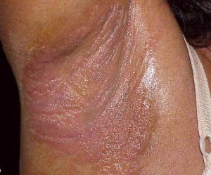 Сыпь при контактном дерматите или аллергии в подмышке