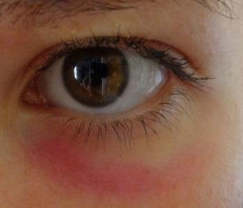 Покрасневшая кожа вокруг глаза