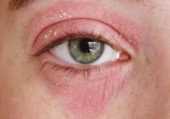 Красный круг вокруг глаза