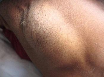 Опухший лимфатический узел в подмышке