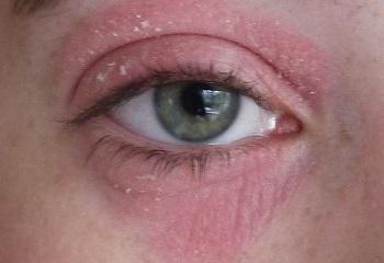 Сухая кожа вокруг глаз из-за экземы
