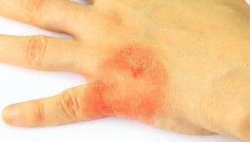Сухая сыпь при аллергической реакции на руке
