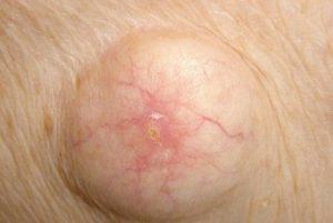 Атерома кожи под мышкой
