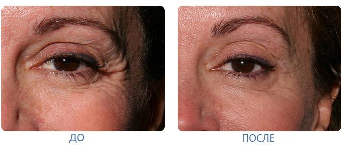 До и после инъекций ботокса вокруг глах