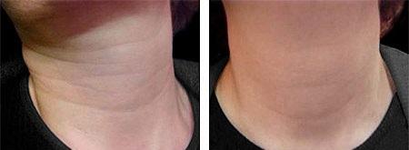 Эффект от инъекций ботокса для шеи
