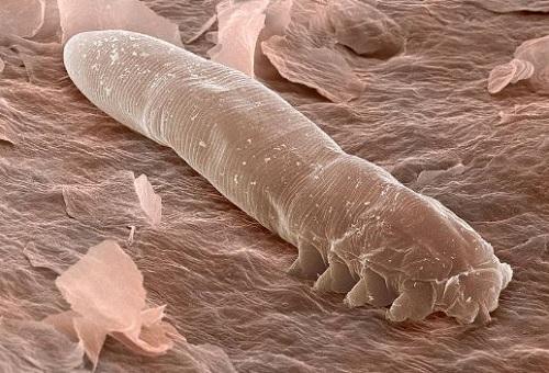 Взрослый ресничный клещ под микроскопом