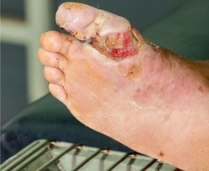 Болячки на ногах (язвы, пузыри) фото, причины, домашние