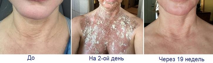 Эффект от лазерной шлифовки шеи