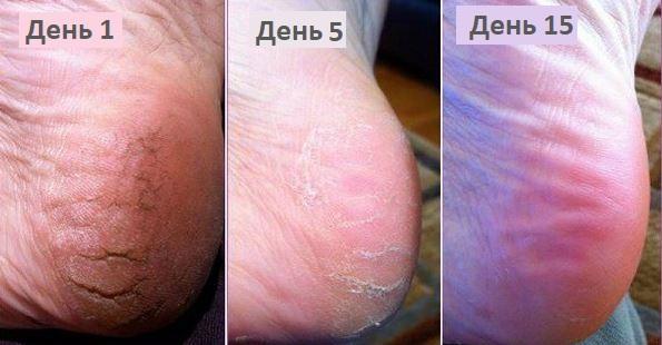 До и после лечения трещин пяток