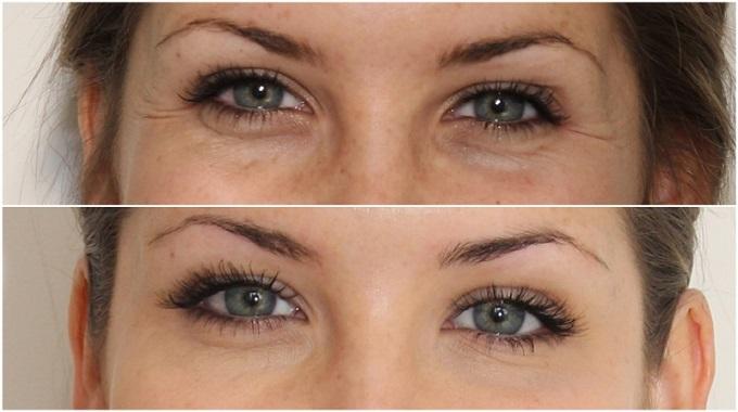 До и после применения филлеров от морщин на глазах