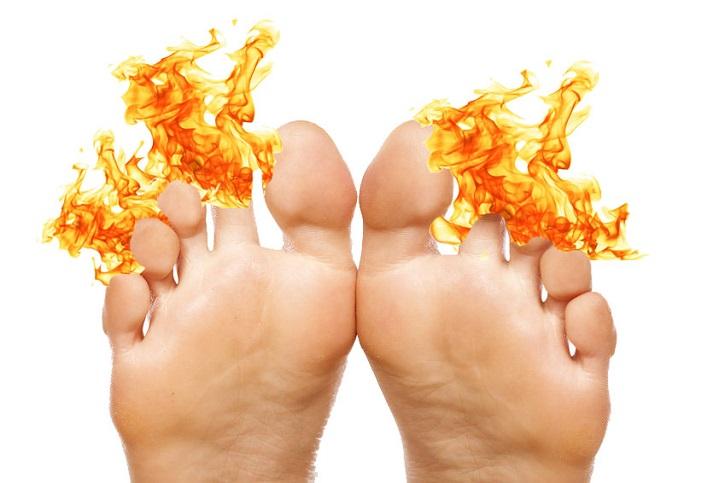 Горят пальцы ног